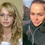 Российские звезды до операций и после