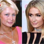 8 голливудских знаменитостей, испортивших внешность ринопластикой
