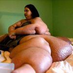 Самой тяжелой женщине в мире удалось сбросить 400 кг