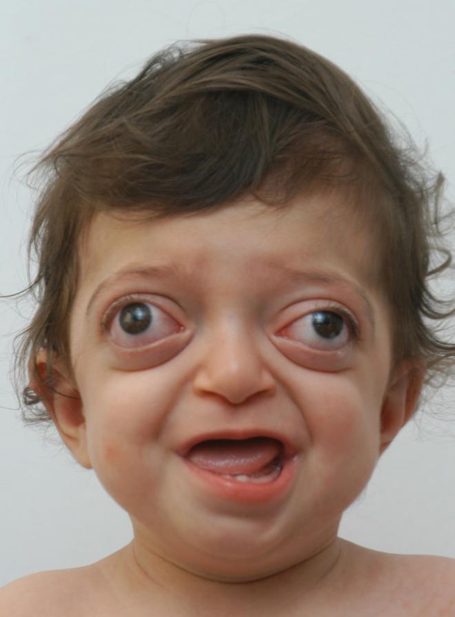 Врачам удалось исправить лицо мальчика Только взгляните какой он сейчас